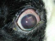 littekenweefsel oog