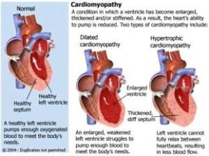 cardiomyopathie1